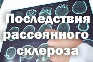 Рассеянный склероз - осложнения