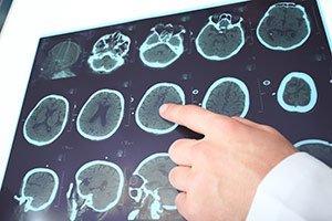 МРТ мозга больного