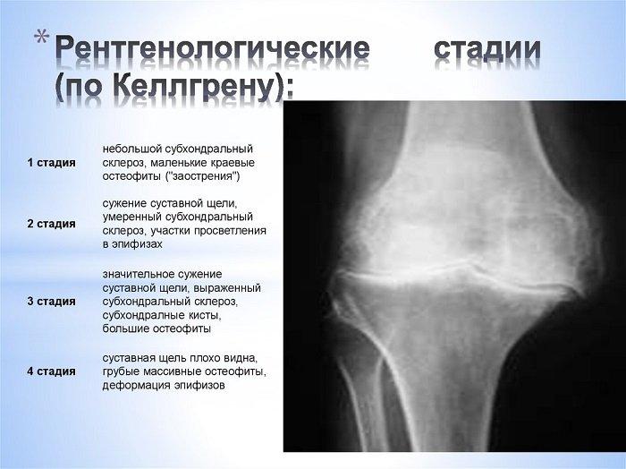 Рентген субхондрального склероза