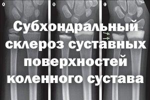 Субхондральный склероз суставных поверхностей коленей