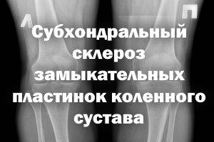Субхондральный склероз замыкательных пластинок колена