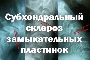 Субхондральный склероз замыкательных пластин