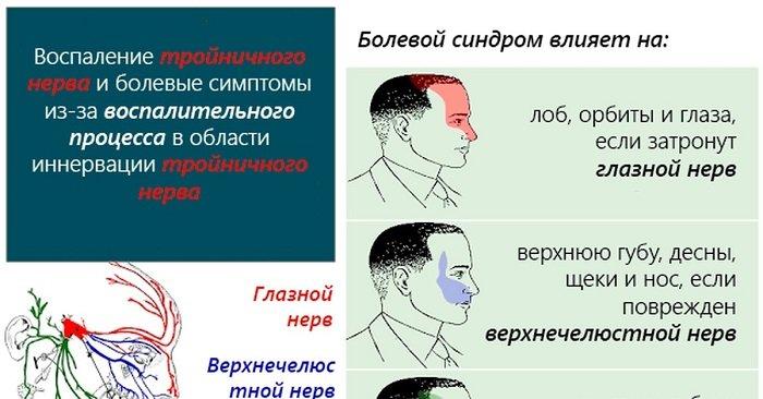 Болевой синдром при болезни