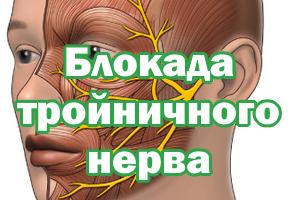 Купирование тройничного нерва
