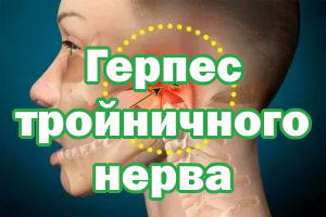 Герпетическое поражение тройничного нерва