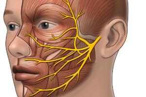 Блокада боли в нерве
