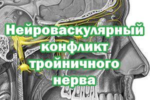 Конфликт тройничного нерва