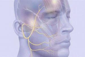 Тройничный нерв на изображении